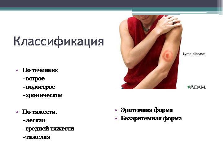 Классификация боррелиоза