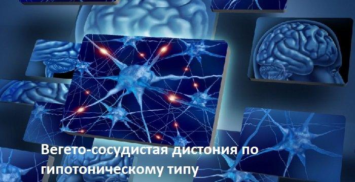 Гипотонический тип ВСД