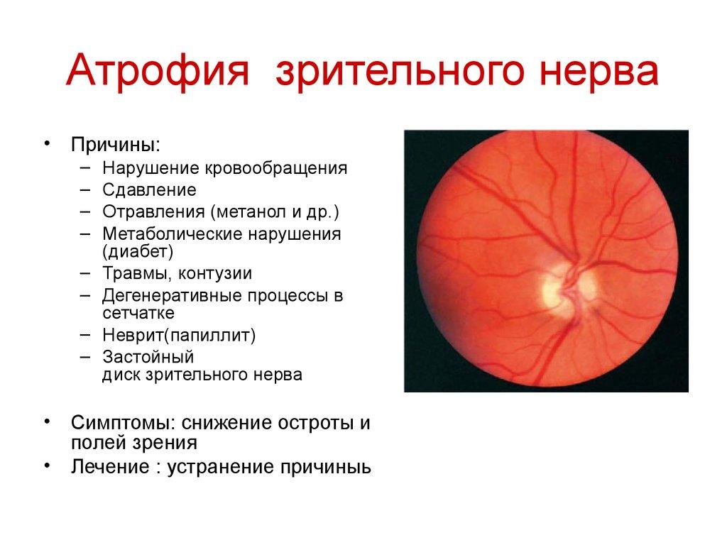 Неврит зрительного нерва: симптомы, лечение. Ретробульбарный неврит зрительного нерва 93