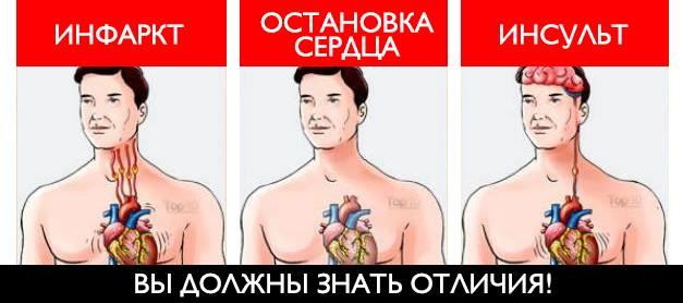 Отличия инсульта от инфаркта