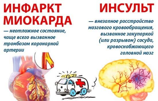 Инсульт или инфаркт