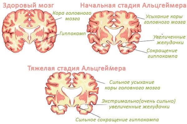 Стадии Альцгеймера