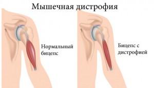 Пример мышечной дистрофии