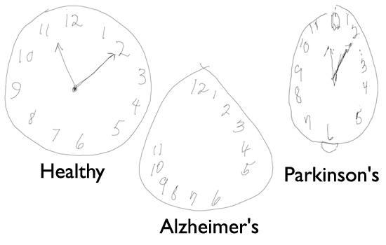 Болезнь Альцгеймера в отличии от Паркинсона