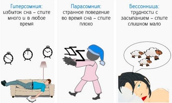 Основные виды нарушений сна