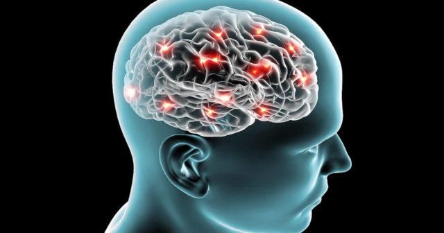 Голова и мозг