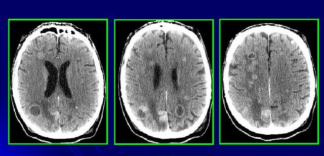 Снимки мозга