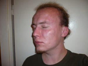 Мужчина с отекшим лицом