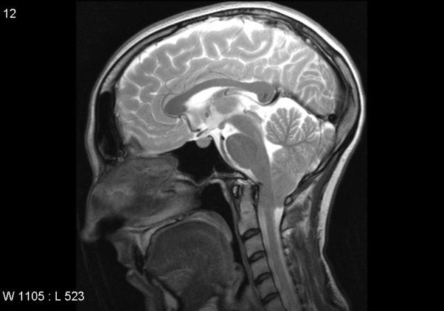 Снимок головы